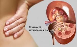 Мочекаменная болезнь - лечение