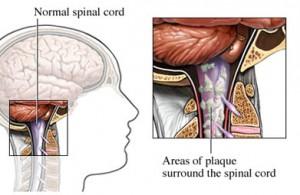 рассеянный склероз: лечение