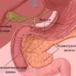 Острый панкреатит - лечение