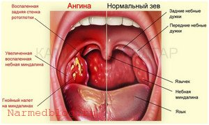 Ангина - тонзиллит
