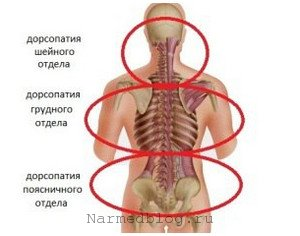Дорсопатия симптомы причины лечение народными средствами