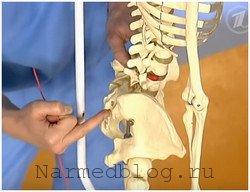 Люмбоишилгая - повреждение седалищного нерва