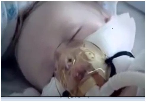 Отек головного мозга у ребенка