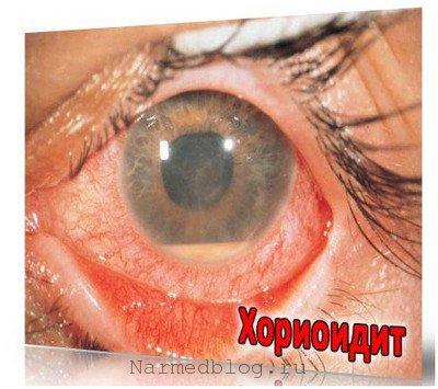 Хориодит - заболевание глаз