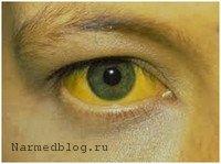 Желтушное окрашивание склер при хроническом гепатите