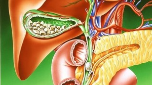 Лечение желчнокаменной болезни