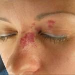 Купероз на лице - лечение
