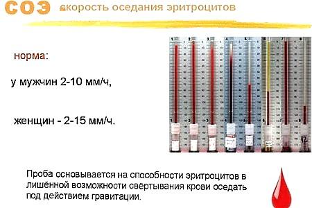 Что означает скорость оседания эритроцитов в анализе крови