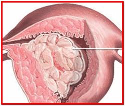 Гиперплазия эндометрия лечение