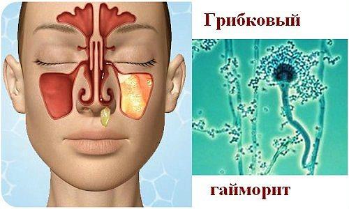 Симптомы грибкового гайморита