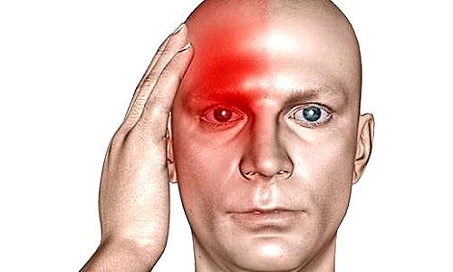 Мигрень – сосудистая головная боль