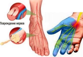 Полинейропатия. Народное лечение полинейропатии