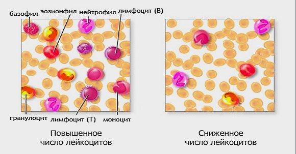 Пониженное число лейкоцитов в крови
