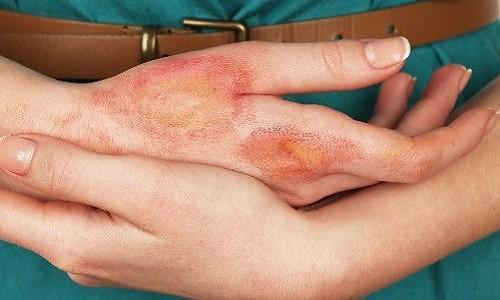 Simptomy-bolezni