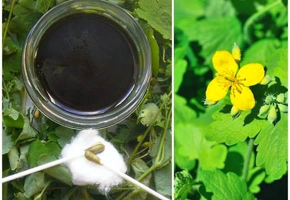 Народные средства - Соки растений
