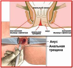 Трещина заднего прохода лечение