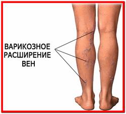 Венозная недостаточность нижних конечностей