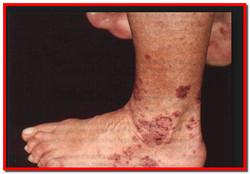 Гранулематоз Вегенера. Симптомы, лечение народными средствами
