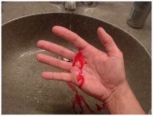 плохая свертываемость крови