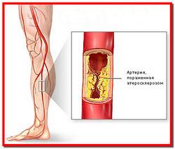 Облитерирующий эндартериит нижних конечностей. Лечение народными средствами