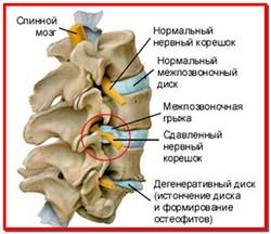 Режущая боль в спине с правой стороны