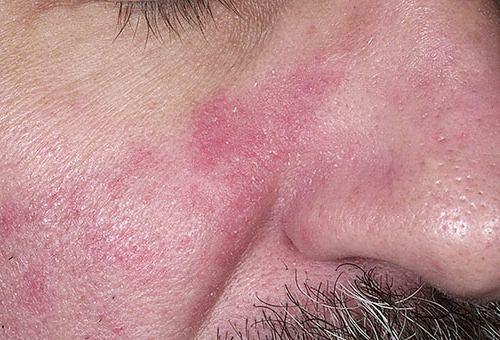seborejnyj-dermatit-lechenie