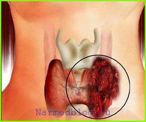 Щитовидная железа узлы, симптомы и лечение