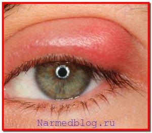 Воспаление глаз. Симптомы, лечение народными средствами